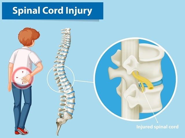 Could coronavirus vaccine cause spinal cord damage?