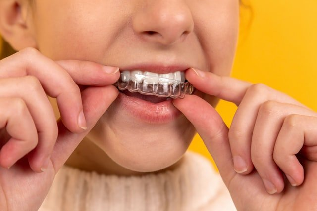The Health Advantages Of Aligned Teeth